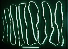 Taenia saginata tape worm Top 10 Most Disgusting Medical Conditions