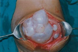 echinococcocis hydatid disease 300x200 Top 10 Most Disgusting Medical Conditions