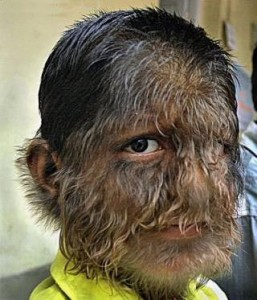 hypertrichosis 257x300 Top 10 Most Disgusting Medical Conditions