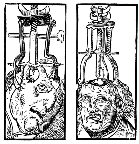 trepenation image 1500s Top Ten Most Disgusting Medical Therapies