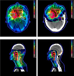 The ins and outs of radiation oncology | ShortWhiteCoats com